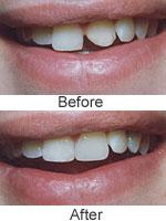 Dental Bonding Cost, Procedure, Dental Bonding Before and After ...