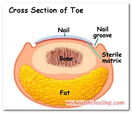 How To Treat An Ingrown Toenail At Home Infected - Best Image Nail ...