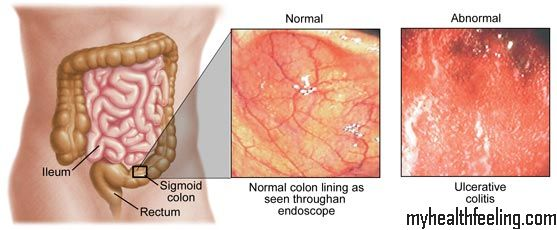 how to tell if you have colitis