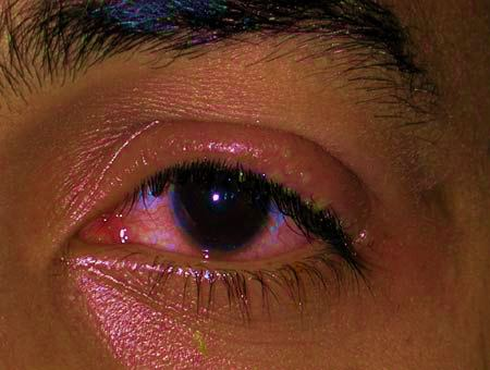 An eye infection (herpes keratitis) 2