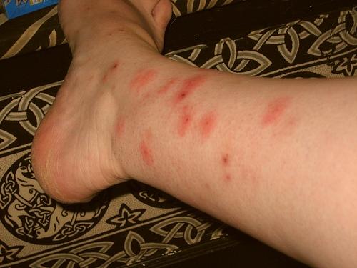 bed bug diseases