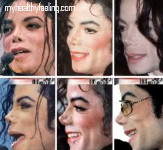 Michael Jackson Vitiligo Pictures
