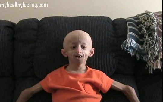 PROGERIA Pictures, PROGERIA Facts, Disease-Symptoms, Treatment