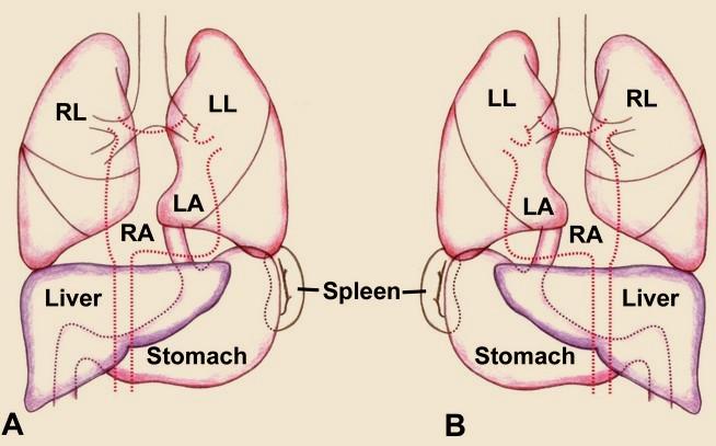 situs inversus totalis, solitus-complications, causes, Skeleton
