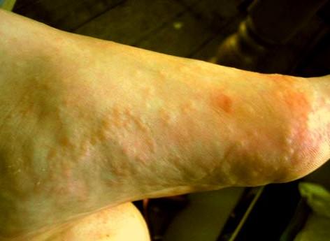 Dyshidrotic Eczema Pic