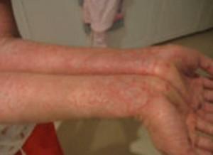 HIV Rash On Hands