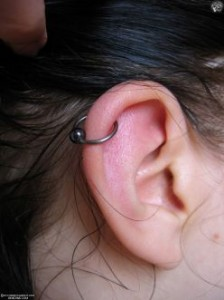 Ear Cartilage Piercing Infection Pain Pictures Healing
