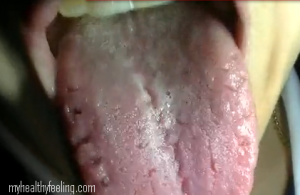 pictures of thrush on tongue #10