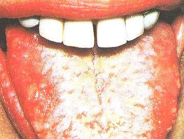 White Tongue Spots
