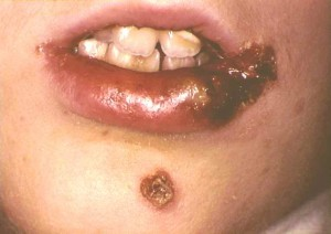 Impetigo Pictures Treatment Impetigo In Adults Children
