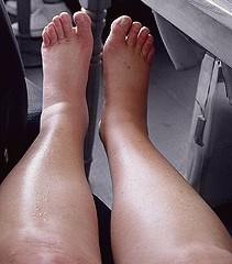 how to get swollen legs down