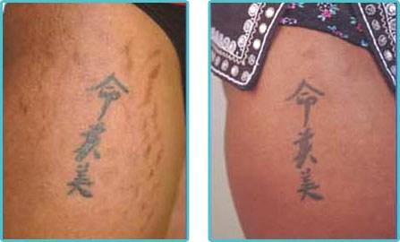 Laser Treatment Stretch Marks