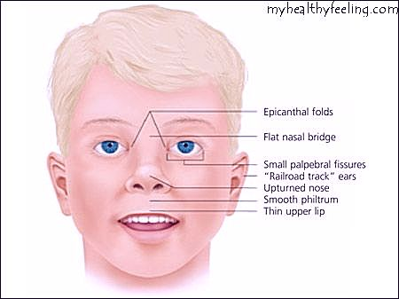fetal alcohol syndrome-pictures, symptoms, statistics, facts, Skeleton