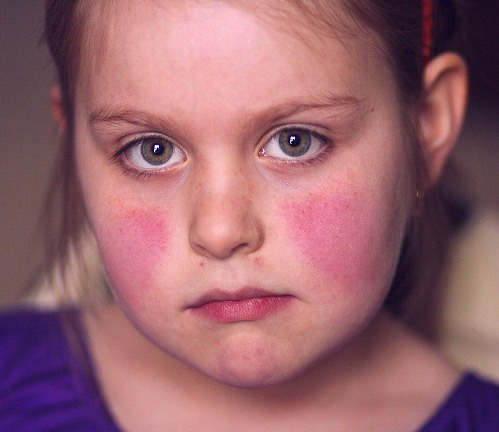 Fifth Disease Pictures 2