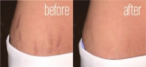 laser treatment for stretch marks before and after