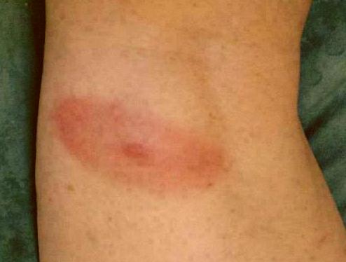 Tick Bite Picture