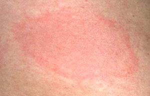 Lyme Disease Rash Pictures  Lyme