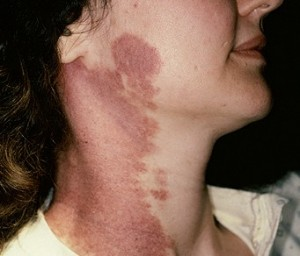 Port Wine Stain Pictures Birthmark Treatment Removal