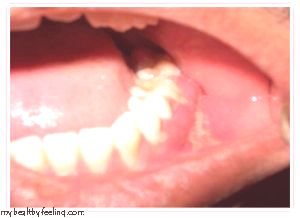 Untreated Tooth Abscesses Cause Health Problems Beyond ...  |Abscessed Tooth Complications Signs