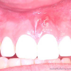 Complications of tooth extraction and its management (oral ...  |Abscessed Tooth Complications Signs