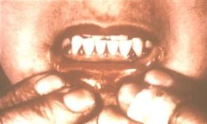 Scurvy Pictures Symptoms Causes Treatment