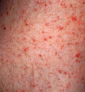 Amoxicillin Rash Face