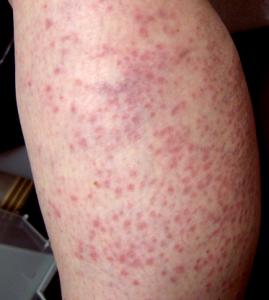 Hiv rash memes for What does a caterpillar rash look like